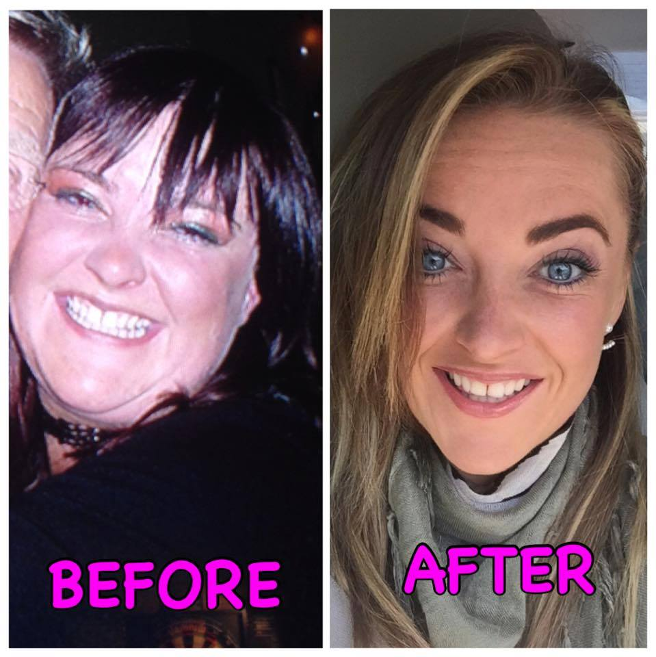 New You Plan before and after photos